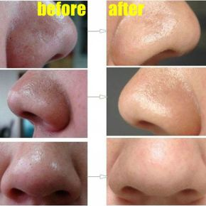 How-To-Easily-Remove-Deep-Blackheads-from-Nose