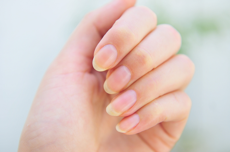 How to stop biting your nails (Finally) | The Fashion Foot